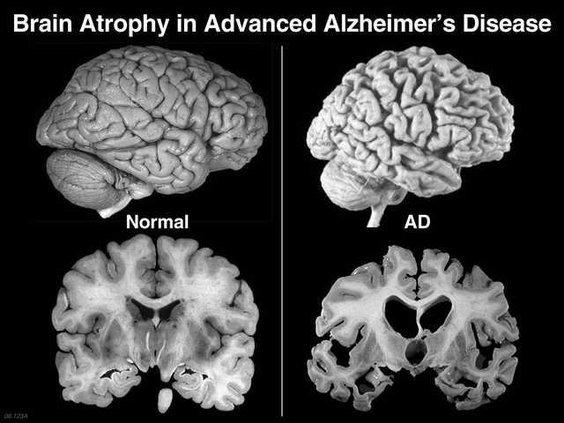 alzheimers-scan